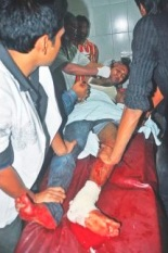 BCL man after tendon-cutting by Shibir at Rajshahi University. Daily Star, Nov 22, 2012